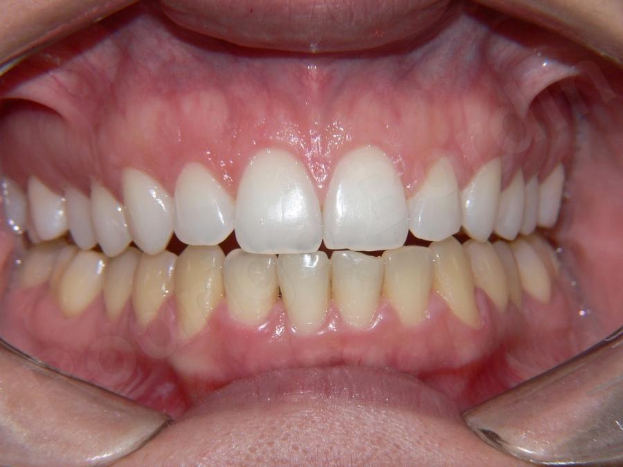 Clareamento Dentario Dentista Em Londrina Pr