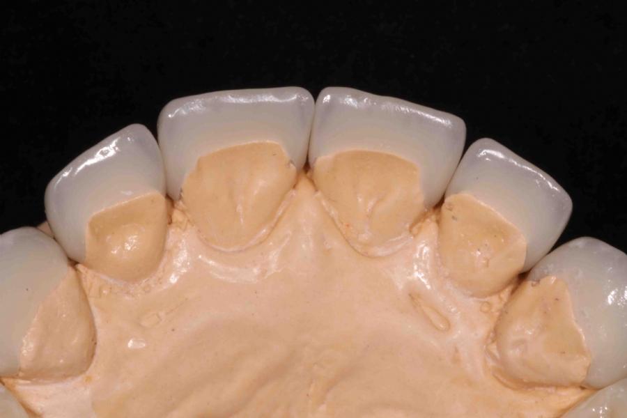 15618c2c108c8 Facetas e Lentes de Contato   Dentista em Londrina - PR